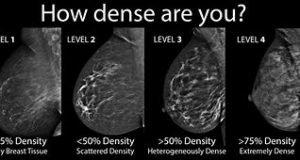 Breast Density